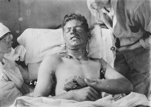 A victim of the mustard gas.